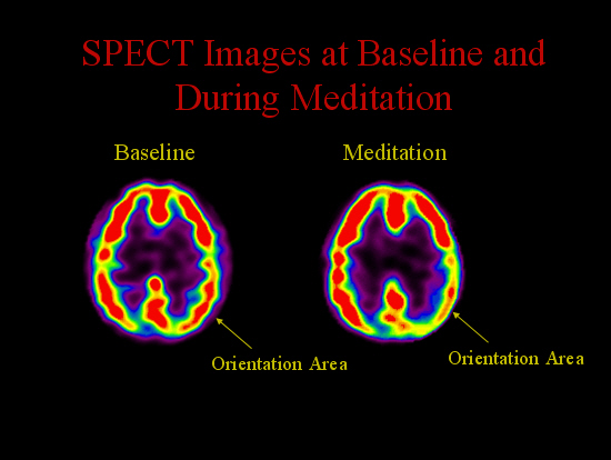 Baseline Meditiation
